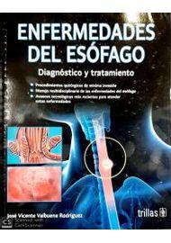 Enfermedades-del-Esofago